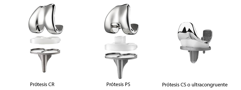 Types-of-total_ knee-prostheses
