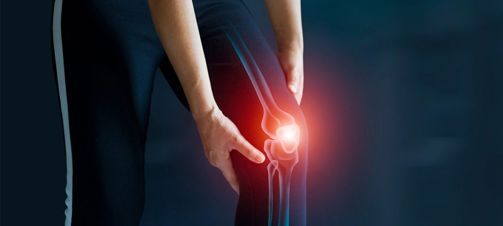 Arthroscopic Knee Surgery in Colombia