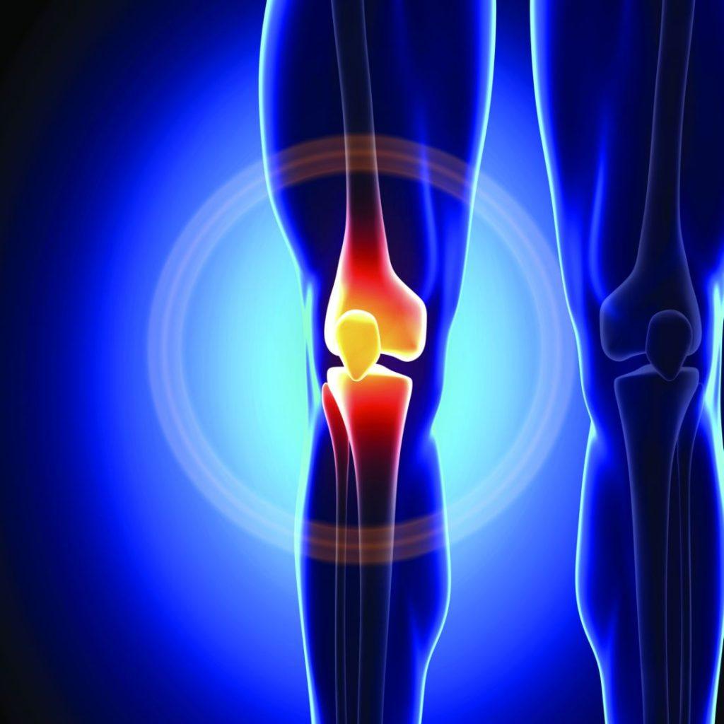 Knee Surgery in bogota