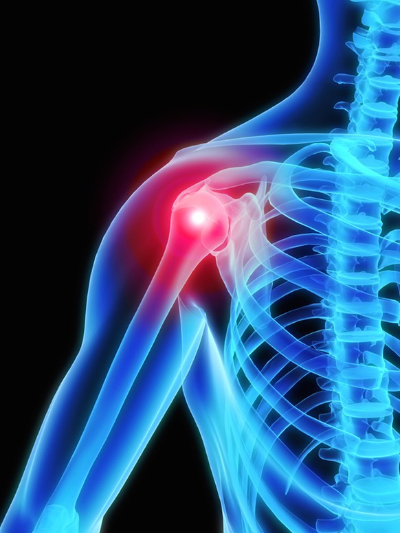 Orthopedic Surgery and Shoulder Traumatology colombia