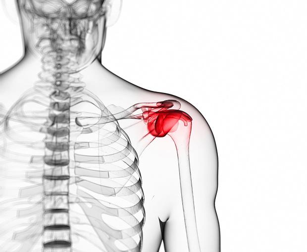 Shoulder Reconstructive Surgery colombia