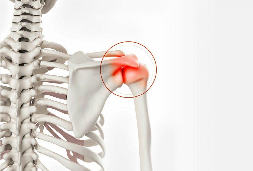 Shoulder Reconstructive Surgery in bogota