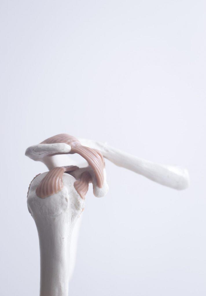 Shoulder Tendon Fracture