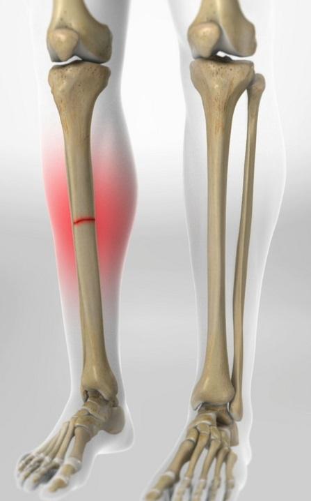 Knee Fracture in Bogota +