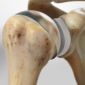 Shoulder Joint Replacements in bogota