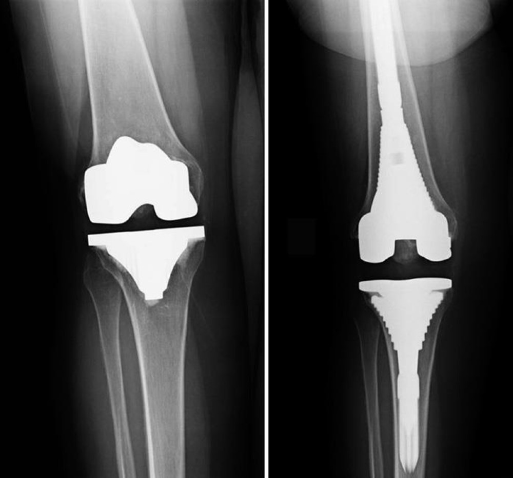 Knee Joint Replacements BOGOTA