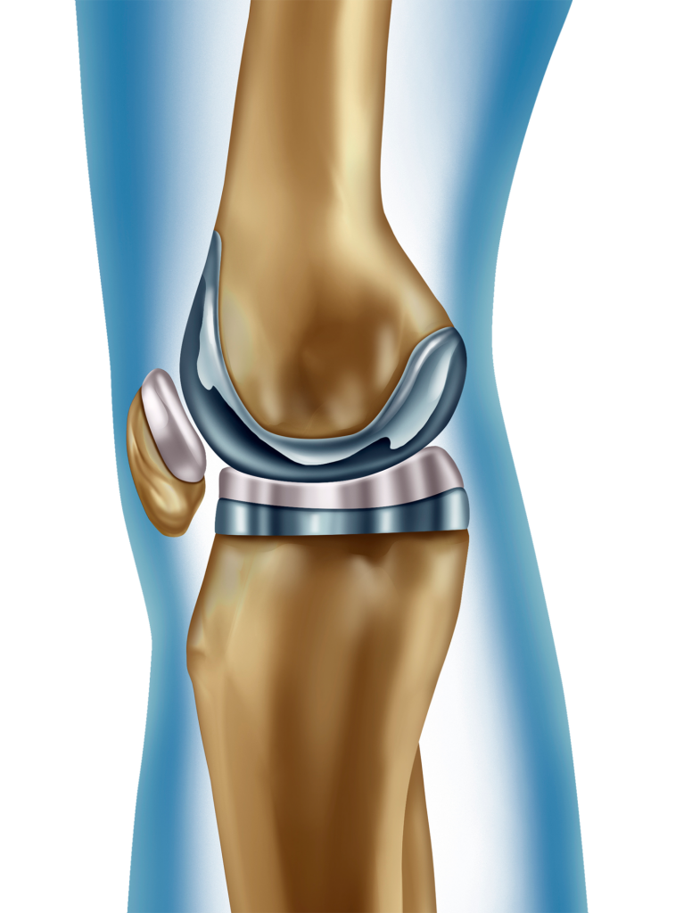 Knee Type Joint Replacements