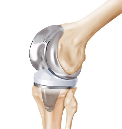 Joint replacements bogota
